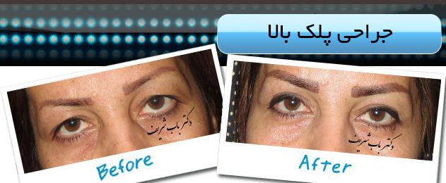 http://bizna.ir/upload/galary/1495957382_004.jpg