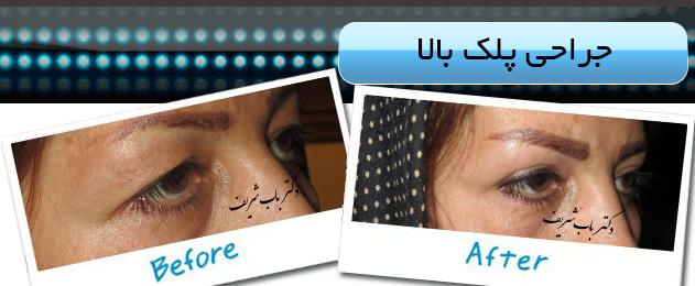 http://bizna.ir/upload/galary/1495957382_005.jpg