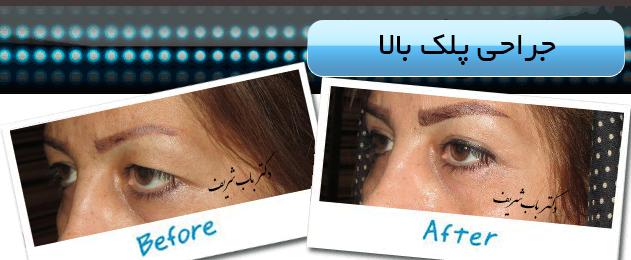 http://bizna.ir/upload/galary/1495957382_006.jpg