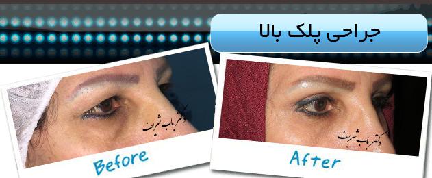 http://bizna.ir/upload/galary/1496733542_002.jpg