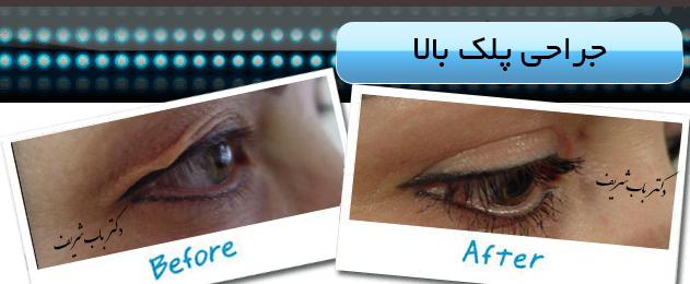 http://bizna.ir/upload/galary/1520436994_004.jpg