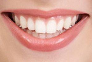 خرید پودر سفید کننده دندان ایماک | بهترین روش برای سفید کردن دندان | از بین بردن زردی دندان