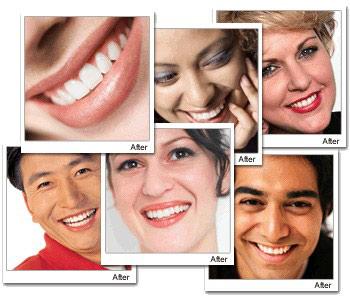 سفيدي دندانهايتان را از ما بخواهيد با دستگاه سفيد كننده دندان