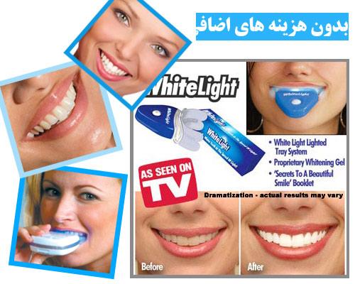 خرید دستگاه وایت لایت سفید کننده دندان