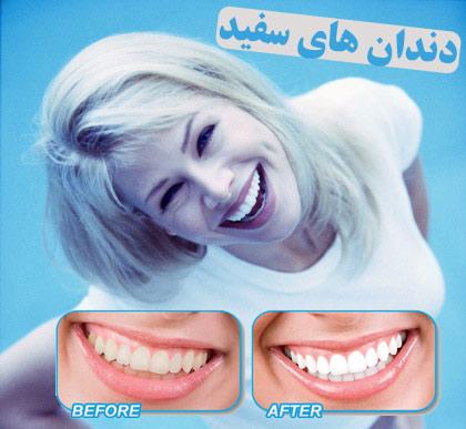 فروش دستگاه سفيد كننده دندان  whitelight