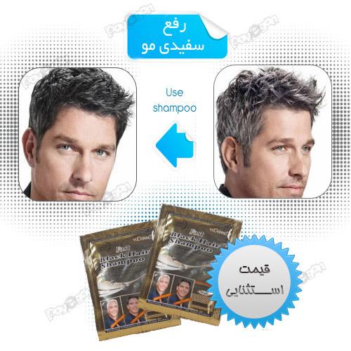 خرید آنلاین شامپو رنگ مو رفع و درمان سفیدی مو با قیمت مناسب