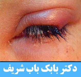 توده چشم