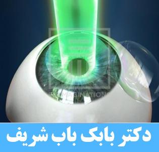 تداخل عمل لازک و انحراف چشم