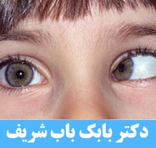 رفع انحراف چشم