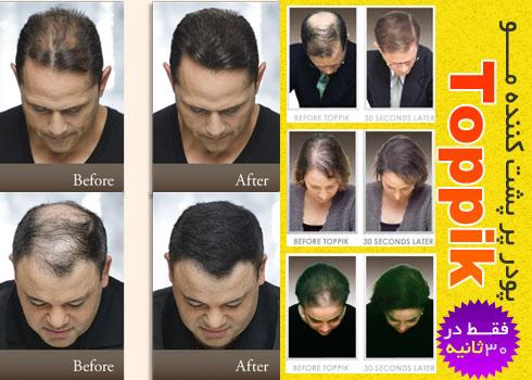 خرید پودر پرپشت كننده موی تاپیک toppik با قیمت مناسب