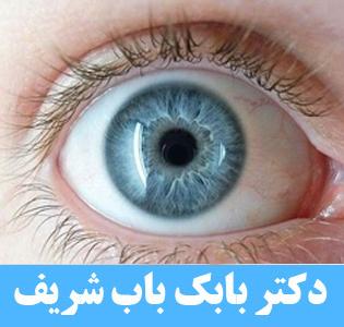 تخلیه چشم و چشم مصنوعی یا لنز های زیبایی؟