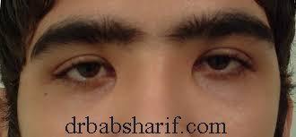 انحراف چشم و تنبلی چشم
