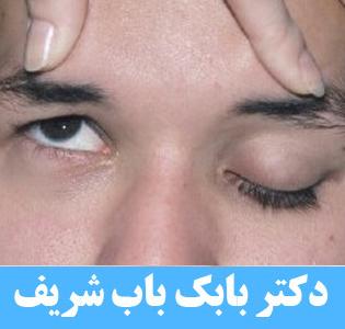فلج شدن پلک چشم