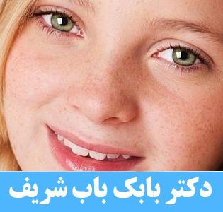 انحراف چشم و درمان