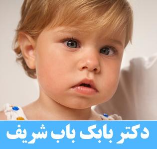 انحراف چشم در کودکان زیر یک سال