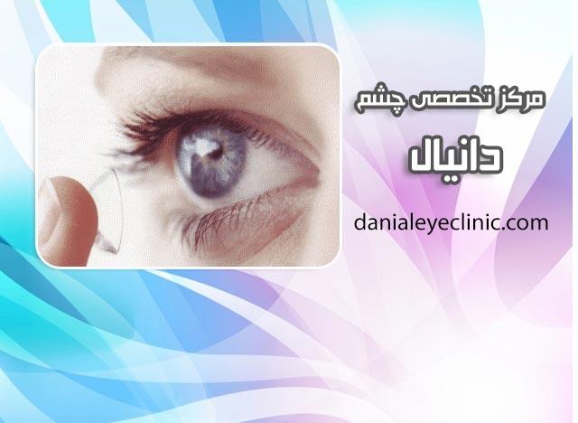 موارد درمان با لنزهای پزشکی