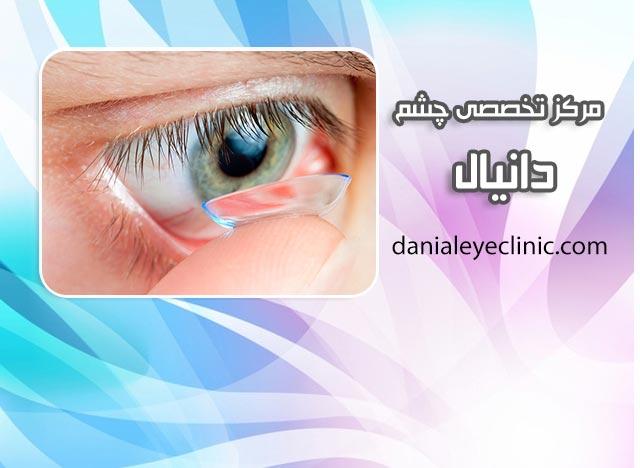 لنز فرکانسی