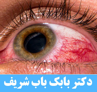 التهاب و قرمزی چشم و پلک و درمان قرمزی چشم