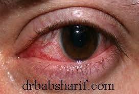 ریزش اشک و قرمزي چشم