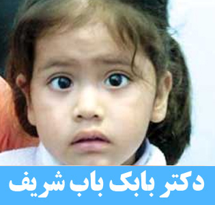 انحراف چشم کودکان
