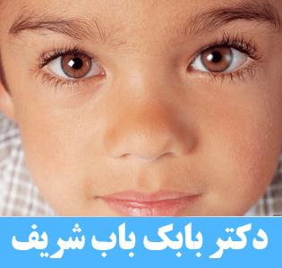 تبلی چشم همراه با انحراف چشم