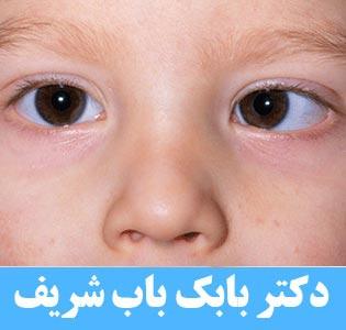 عمل انحراف چشم