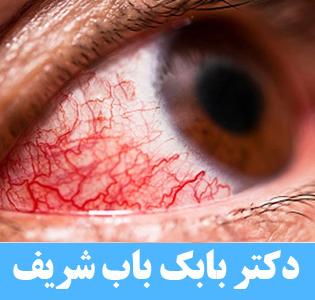 قرمز شدن چشم بعد از جراحی انحراف چشم