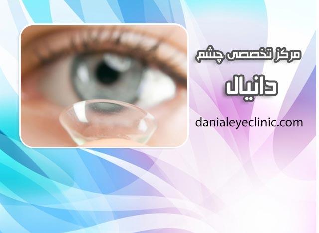 انواع لنزهای تماسی