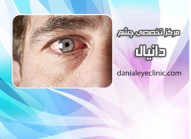 عفونت چشمی