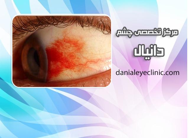 التهاب عصب بینایی