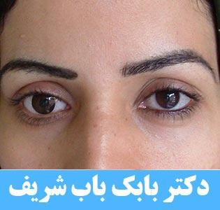 درمان استرابیسم یا انحراف چشم