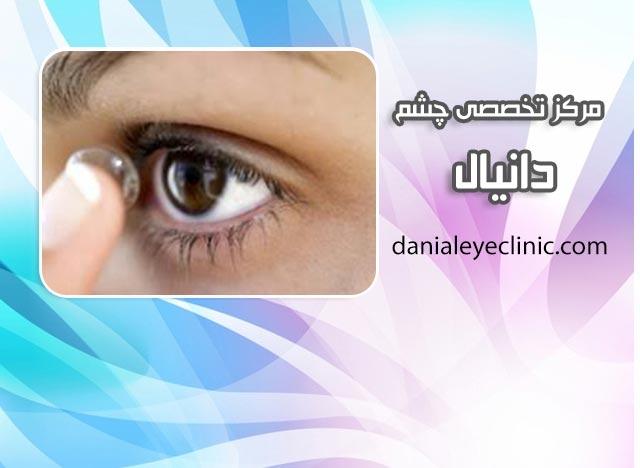 التهاب رنگدانه ای چشم