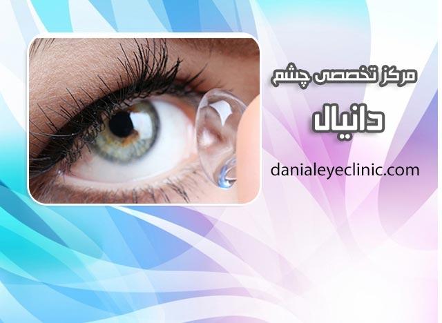 درمان سوزش چشم