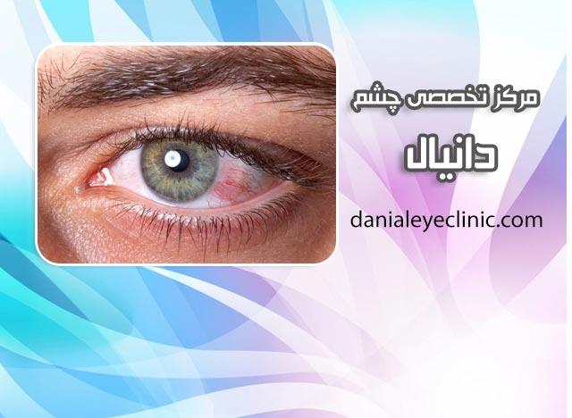 درمان تبخال چشمی