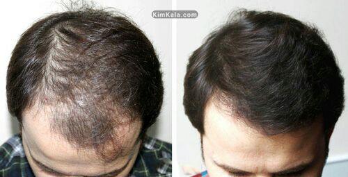 اسپری پرپشت کننده موی سر F&H - حجم دهنده موی سر - 09190678478 درمان کم پشتی مو