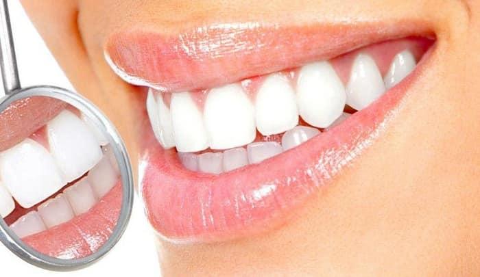 لمینت جدید دندان چگونه است ؟