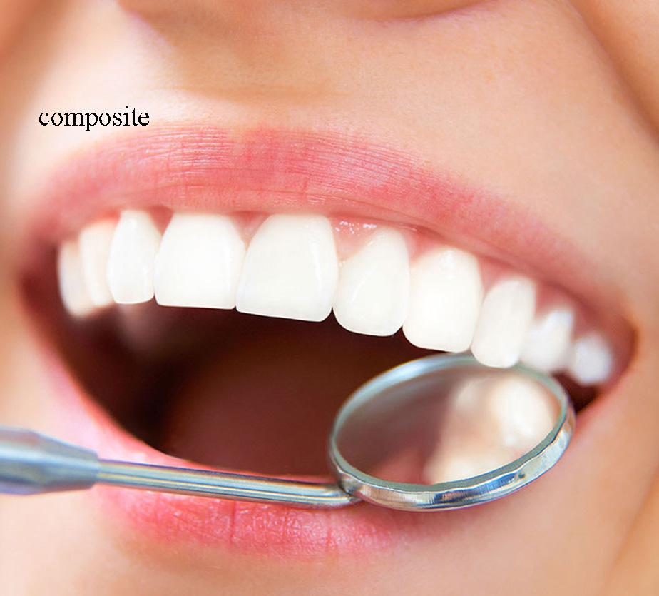 کامپوزیت دندان چقدر عمر می کند؟