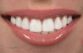 بهترین ترمیم برای دندان شکسته  کامپوزیت است  یا لمینت؟