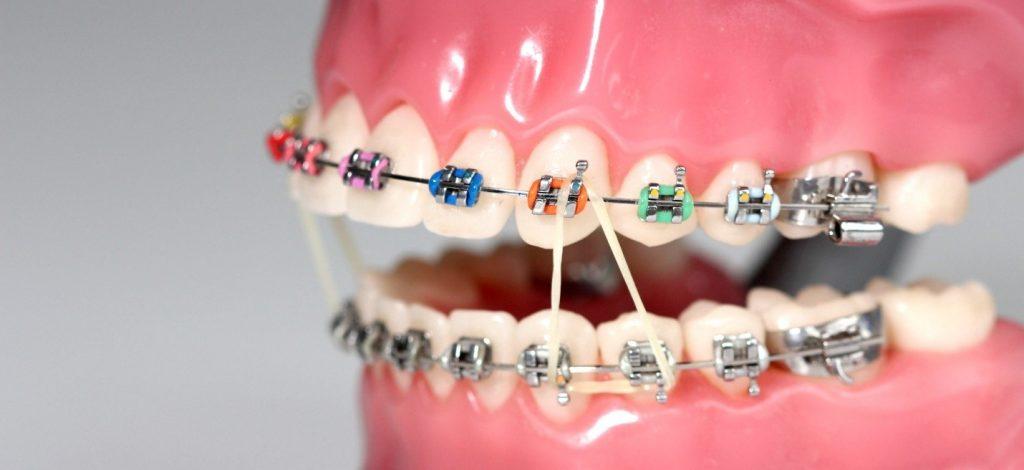 پاسخ به دیگر سوالات رایج درباره کش ارتودنسی دندان
