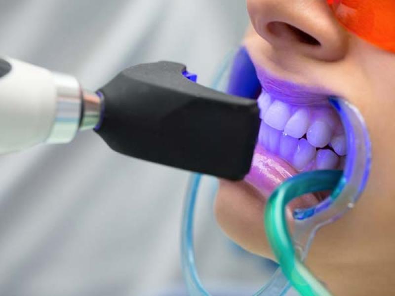سفید کردن و بلیچینگ دندان