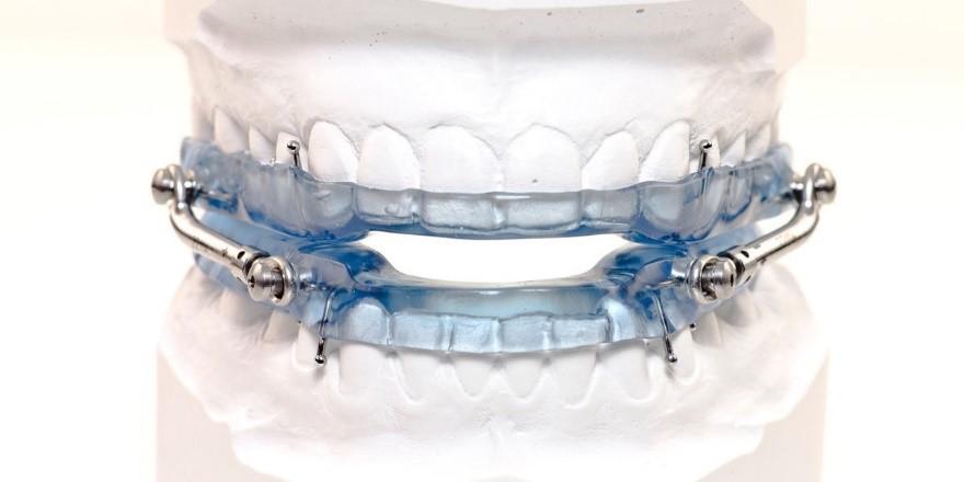 مزایا و معایب ارتودنسی ژله ای دندان