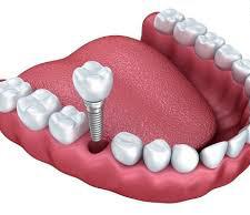 ایمپلنت دندان برای کسانی که پوکی استخوان دارند