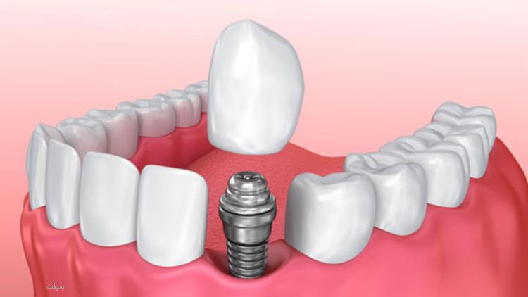 عوارض روانی ایمپلنت دندان