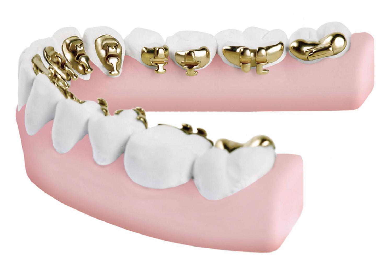 ارتودنسی دندان لینگوال
