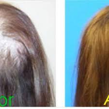 اسپری پرپشت کننده موی سر|09190678478|بهترین اسپری پرپشت کننده موی سرF&H|