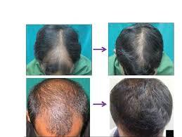 اسپری حجم دهنده موی سر09190678478|بهترین اسپری پرپشت کننده موی سرF&H