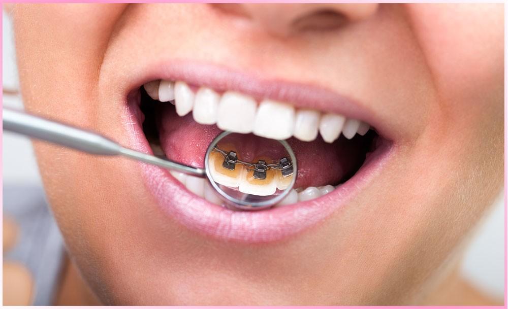 مزایا و معایب ارتودنسی پشت دندانی کدام اند؟