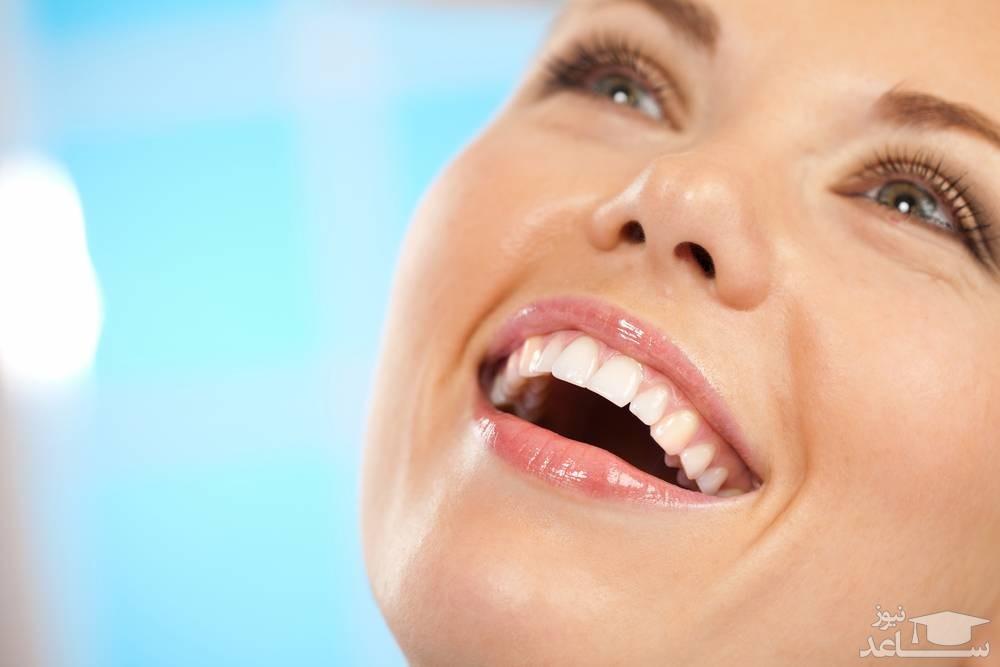 ۳ فرق کامپوزیت و لمینت دندان