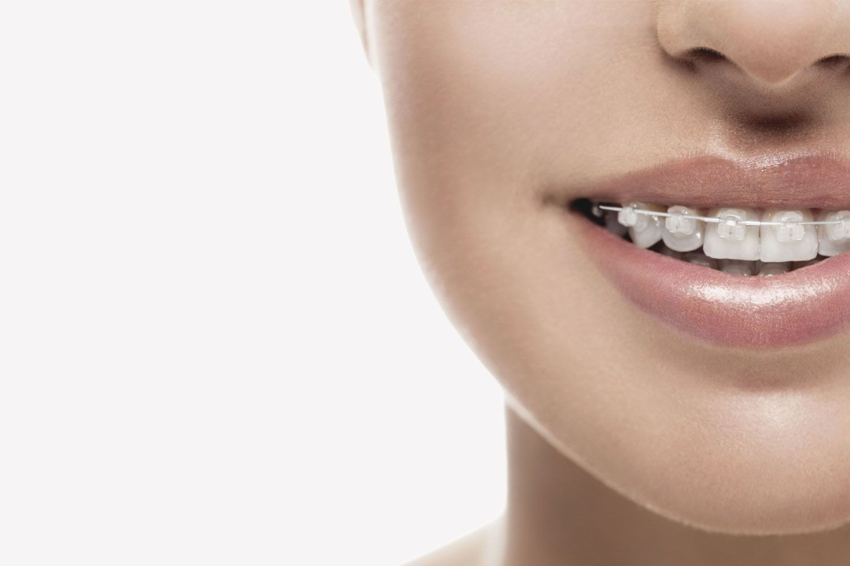 ارتودنسی با بریسهای سرامیکی یا همرنگ دندان