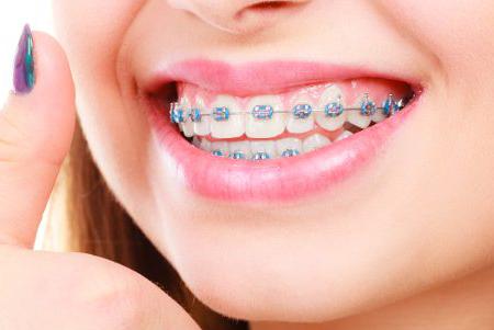ارتودنسی دندان پایین چگونه انجام می شود؟